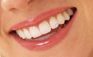 Diamond Tooth Piercing