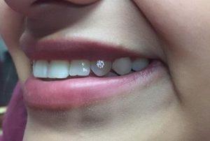 Teeth Piercing